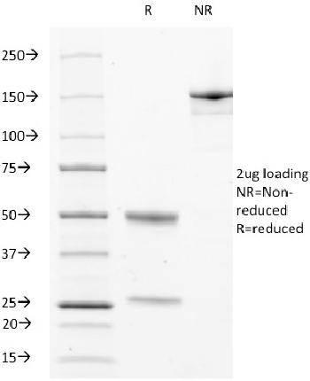 Fig. 1: SDS-PAGE Analysis Purified CD63 Mouse Monoclonal Antibody (529). Confirmation of Purity and Integrity of Antibody.