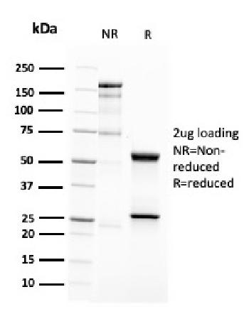 Fig. 2: SDS-PAGE Analysis Purified CD63 Mouse Recombinant Monoclonal Antibody (LAMP3/2788). Confirmation of Purity and Integrity of Antibody.