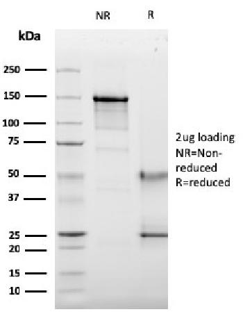 Fig. 4: SDS-PAGE Analysis Purified CD63 Mouse Recombinant Monoclonal Antibody (LAMP3/2789). Confirmation of Purity and Integrity of Antibody.