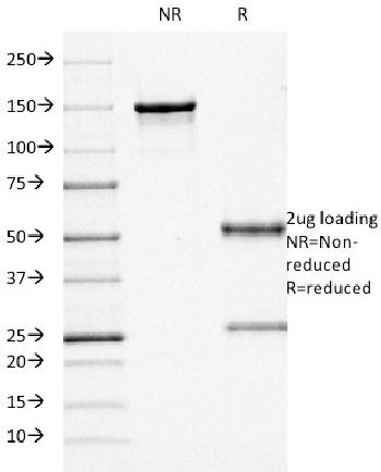 Fig. 2: SDS-PAGE Analysis Purified CD68 Mouse Monoclonal Antibody (KP1). Confirmation of Purity and Integrity of Antibody.