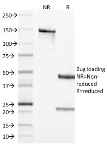 Fig. 3: SDS-PAGE Analysis Purified CD68 Mouse Monoclonal Antibody (LAMP4/1830). Confirmation of Integrity and Purity of Antibody.