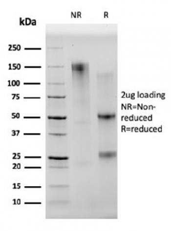 Fig. 2: SDS-PAGE Analysis Purified CD68 Mouse Monoclonal Antibody (C68/2501). Confirmation of Integrity and Purity of Antibody.
