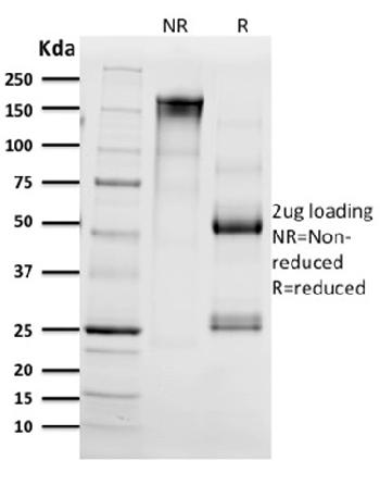 Fig. 2: SDS-PAGE Analysis Purified CD68 Mouse Monoclonal Antibody (C68/2511). Confirmation of Integrity and Purity of Antibody.