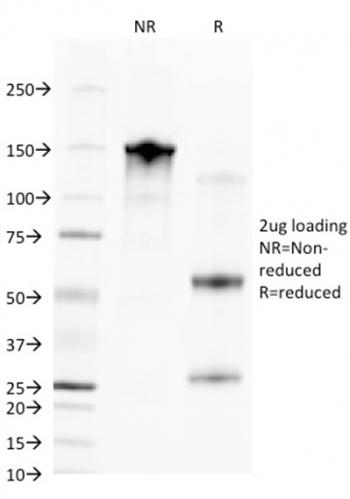 Fig. 3: SDS-PAGE Analysis Purified CD68 Mouse Monoclonal Antibody (C68/2709). Confirmation of Integrity and Purity of Antibody.