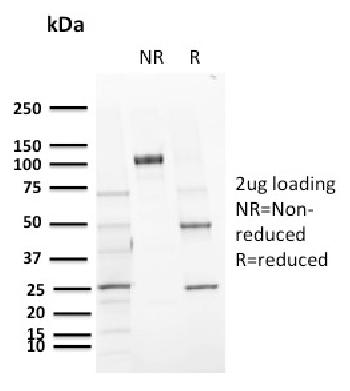 Fig. 1: SDS-PAGE Analysis Purified CD72 Mouse Monoclonal Antibody (BU40). Confirmation of Purity and Integrity of Antibody.