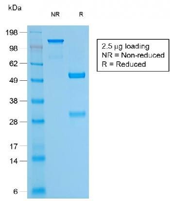 Fig. 2: SDS-PAGE Analysis Purified CD79a Mouse Recombinant Monoclonal Antibody (rIGA/764). Confirmation of Purity and Integrity of Antibody