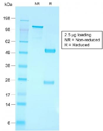 Fig. 3: SDS-PAGE Analysis Purified CD79a Rabbit Recombinant Monoclonal Antibody (IGA/1790R). Confirmation of Purity and Integrity of Antibody.