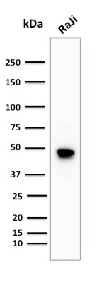 Anti-CD79a (B-Cell Marker) Monoclonal Antibody(Clone: IGA/1688R)