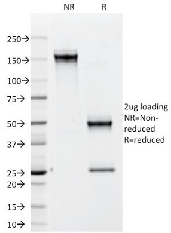 Fig. 2: SDS-PAGE Analysis Purified CD79b Mouse Monoclonal Antibody (IGB/1842). Confirmation of Integrity and Purity of Antibody.