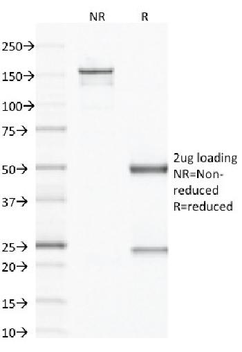 Fig. 2: SDS-PAGE Analysis Purified CD79b Mouse Monoclonal Antibody (IGB/1843). Confirmation of Integrity and Purity of Antibody.