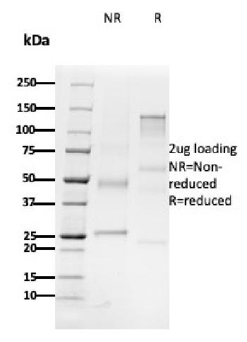 Fig. 2: SDS-PAGE Analysis Purified CD79b Mouse Monoclonal Antibody (B29/123). Confirmation of Purity and Integrity of Antibody.