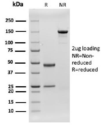 Fig. 1: SDS-PAGE Analysis Purified CD79b Recombinant Mouse Monoclonal Antibody (rIGB/1842). Confirmation of Integrity and Purity of Antibody.