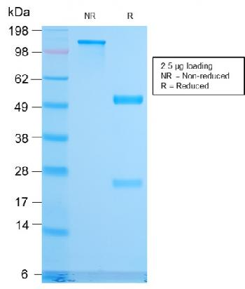 Fig. 2: SDS-PAGE Analysis Purified CD79b Recombinant Rabbit Monoclonal Antibody (IGB/3170R). Confirmation of Purity and Integrity of Antibody.
