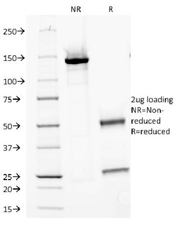Fig. 3: SDS-PAGE Analysis Purified MVP Monoclonal Antibody (Clone 1014). Confirmation of Purity and Integrity of Antibody.