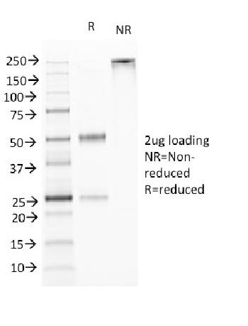 Fig. 3: SDS-PAGE Analysis Purified TNFS15 / VEGI Monoclonal Antibody (VEGI /1283). Confirmation of Purity and Integrity of Antibody