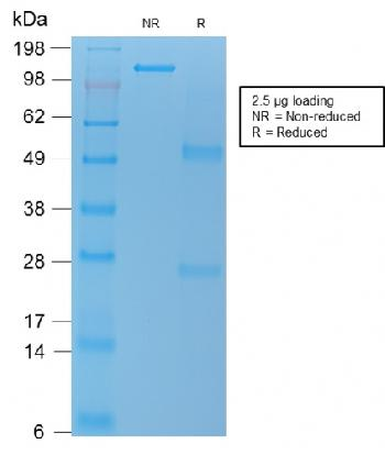 Fig. 3: SDS-PAGE Analysis Purified VEGI Mouse Recombinant Monoclonal Antibody (rVEGI /1283). Confirmation of Purity and Integrity of Antibody.