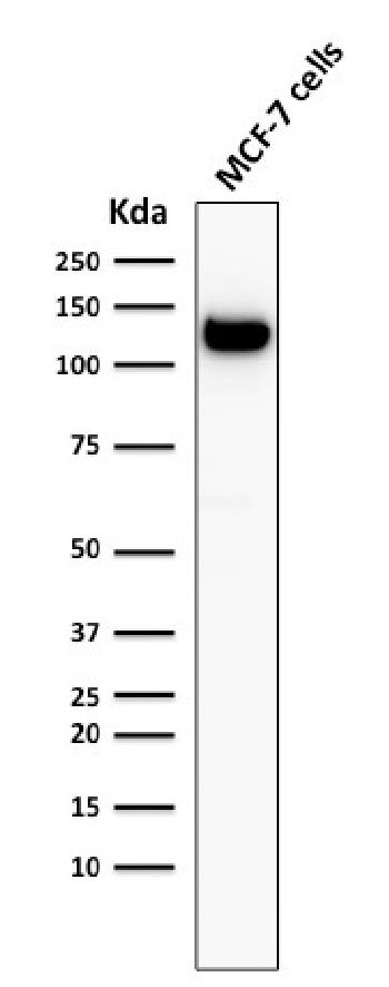 Anti-E-Cadherin (CDH1) / CD324 (Intercellular Junction Marker) Monoclonal Antibody(Clone: 4A2)