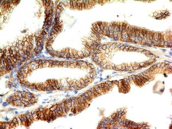 Fig. 1: Formalin-fixed, paraffin-embedded human Colon Carcinoma stained with E-Cadherin Monoclonal Antibody (CDH1/1525).