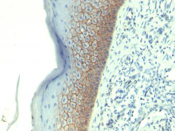 Fig. 2: Formalin-fixed, paraffin-embedded human Skin stained with E-Cadherin Monoclonal Antibody (CDH1/1525).