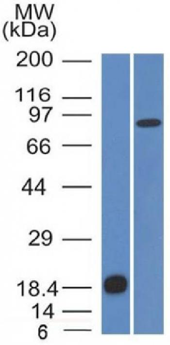 Fig. 3: Western Blot Analysis (A) Recombinant Protein (B) human Stomach lysate Using E-Cadherin Monoclonal Antibody (CDH1/1525).