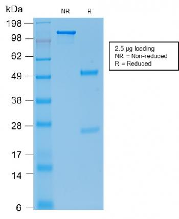 Anti-E-Cadherin (CDH1) / CD324 (Intercellular Junction Marker) Monoclonal Antibody(Clone: rCDH1/1525)