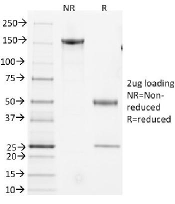 Fig. 1: SDS-PAGE Analysis Purified CD3e Hamster Monoclonal Antibody (145-2C11).