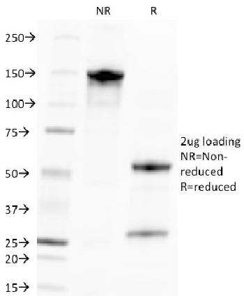 Fig. 1: SDS-PAGE Analysis Purified CMV-p65 Mouse Monoclonal Antibody (CMV100). Confirmation of Purity and Integrity of Antibody