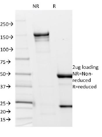 Fig. 1: SDS-PAGE Analysis Purified Borrelia burgdorferi (p41 Flagellin) (6802). Confirmation of Integrity and Purity of Antibody.