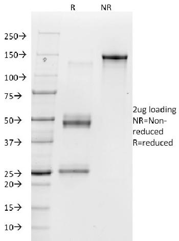 Fig. 1: SDS-PAGE Analysis Purified Vitronectin Receptor Mouse Monoclonal Antibody (23C6). Confirmation of Purity and Integrity of Antibody.