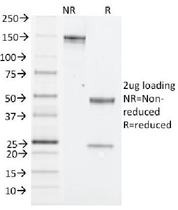 Fig. 1: SDS-PAGE Analysis Purified NK1.1 Mouse Monoclonal Antibody (PK136). Confirmation of Integrity and Purity of Antibody.