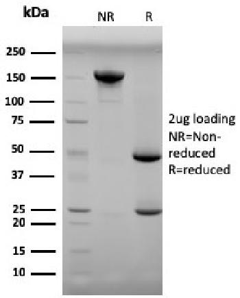Fig. 2: SDS-PAGE Analysis Purified Progesterone Mouse Monoclonal Antibody (6-5E-3F). Confirmation of Purity and Integrity of Antibody