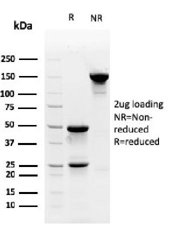 Fig. 1: SDS-PAGE Analysis Purified Myofibroblast Marker Mouse Monoclonal Antibody (PR 2D3). Confirmation of Purity and Integrity of Antibody.