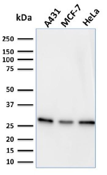 Fig. 2: Western Blot Analysis of A431, MCF-7 & HeLa cell lysates using Myofibroblast Marker Mouse Monoclonal Antibody (PR 2D3).