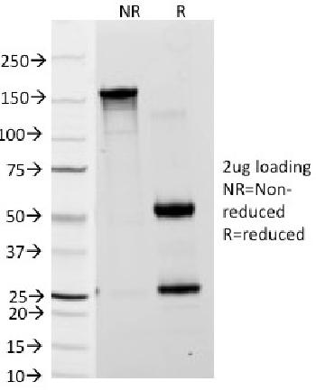 Anti-Lewis A (Blood Group Antigen) Monoclonal Antibody(Clone: 7LE)