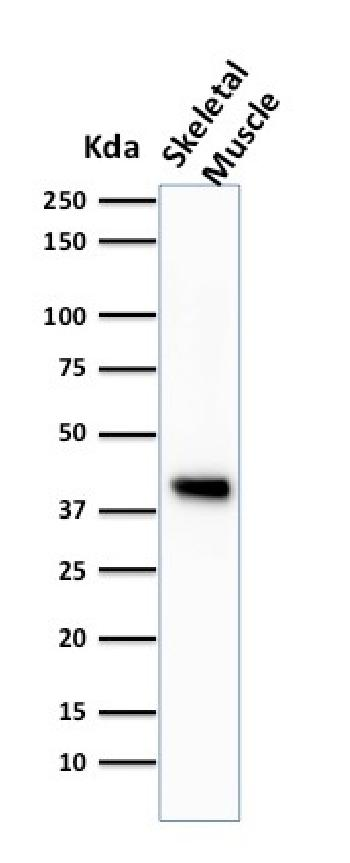 Anti-Actin, Muscle Specific (Muscle Cell Marker) Monoclonal Antibody(Clone: HHF35)