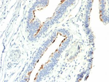 Anti-Thomsen-Friedenreich Antigen / CD176 (Pan Carcinoma Marker) Monoclonal Antibody(Clone: A78-G/A7)