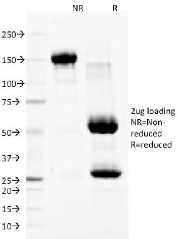 Fig. 1: SDS-PAGE Analysis Purified Nuclear Membrane Marker Mouse Monoclonal Antibody (NM97). Confirmation of Purity and Integrity of Antibody.