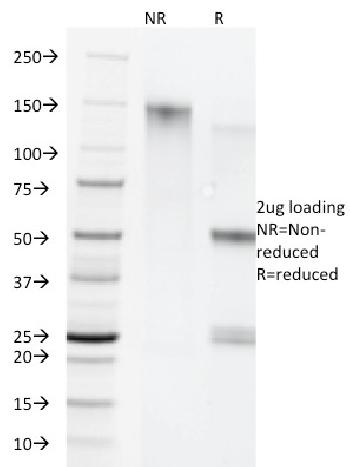 Fig. 1: SDS-PAGE Analysis Purified Cytokeratin 5/8 Monoclonal Antibody (C-50). Confirmation of Purity and Integrity of Antibody.
