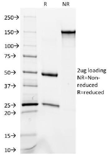 Fig. 1: SDS-PAGE Analysis Purified Cytokeratin 8/18 Monoclonal Antibody (C-51). Confirmation of Purity and Integrity of Antibody.