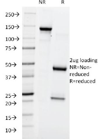Fig. 2: SDS-PAGE Analysis Purified Lewis Y Mouse Monoclonal Antibody (A70-A/A9). Confirmation of Purity and Integrity of Antibody.