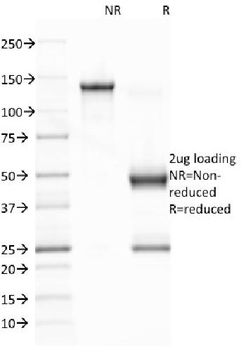 Fig. 1: SDS-PAGE Analysis Purified EBV Mouse Monoclonal Antibody (CS1). Confirmation of Integrity and Purity of Antibody.