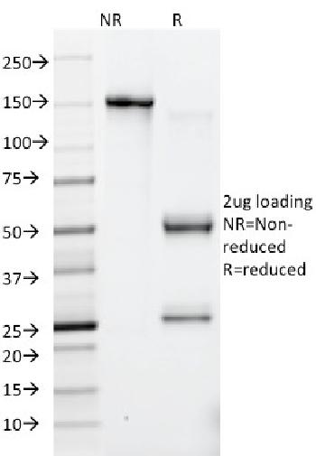 Fig. 2: SDS-PAGE Analysis Purified HSV1 Mouse Monoclonal Antibody (10A3).