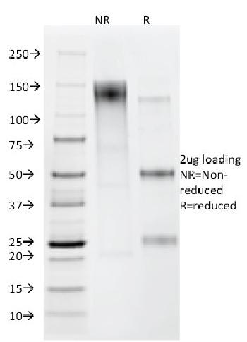 Fig. 1: SDS-PAGE Analysis Purified Helicobacter pylori Mouse Monoclonal Antibody (HP/212). Confirmation of Purity and Integrity of Antibody.