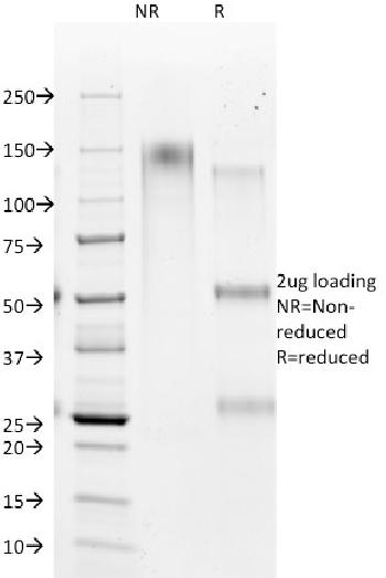 Fig. 1: SDS-PAGE Analysis Purified HSA Mouse Monoclonal Antibody (HSA98). Confirmation of Purity and Integrity of Antibody.