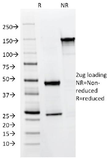 Fig. 3: SDS-PAGE Analysis of Purified Cytokeratin 8/18 Mouse Monoclonal Antibody (KRT8.18/1346). Confirmation of Integrity and Purity of Antibody.