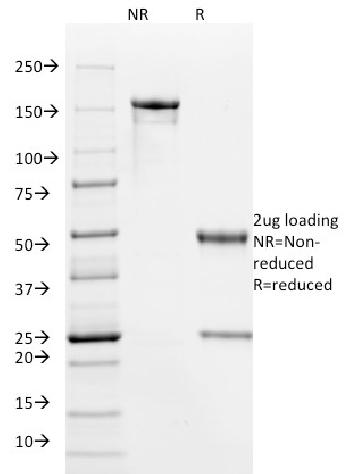 Fig. 2: SDS-PAGE Analysis Purified HPV-16 Mouse Monoclonal Antibody (HPV16/1295). Confirmation of Purity and Integrity of Antibody.