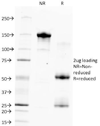 Fig. 1: SDS-PAGE Analysis Purified Hepatocyte Specific Antigen Monoclonal Antibody (HSA133). Confirmation of Purity and Integrity of Antibody.