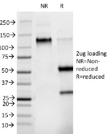 Fig. 1: SDS-PAGE Analysis Purified Phosphotyrosine Mouse Monoclonal Antibody (PY265). Confirmation of Purity and Integrity of Antibody.