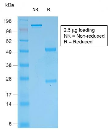 Fig. 2: SDS-PAGE Analysis Purified Multi-Cytokeratin Mouse Recombinant Monoclonal Antibody (rKRT/457).