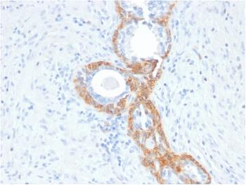 Fig. 1: Formalin-fixed, paraffin-embedded human Prostate Carcinoma stained with CK HMW Mouse Recombinant Monoclonal Antibody (rKRTH/2148).